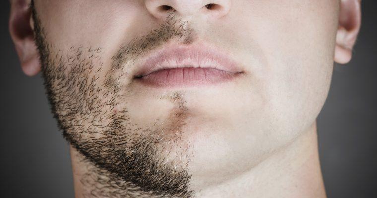 ひげ脱毛はやっぱり痛い!痛みをなるべく感じにくくするには?